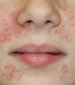 perioral dermatitis at nose and mouth