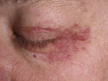 Perioral Dermatitis Freckles And Brows