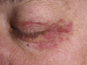 perioral dermatitis around eye